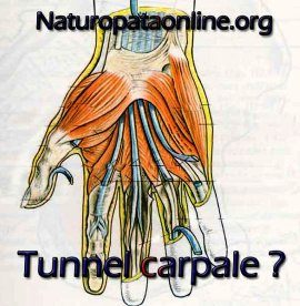 Sindrome del Tunnel Carpale – dott. Origa