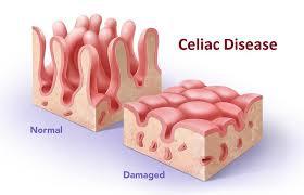 Celiachia: alcuni consigli