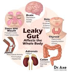 Leaky Gut Syndrom